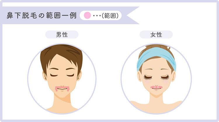 鼻下脱毛の範囲を説明したイラスト