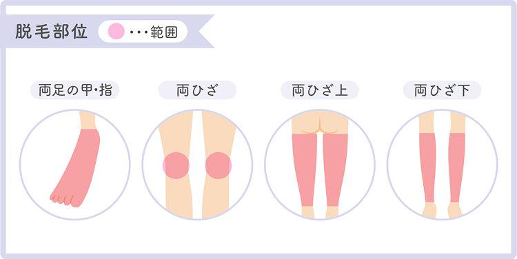 足脱毛の範囲を説明したイラスト