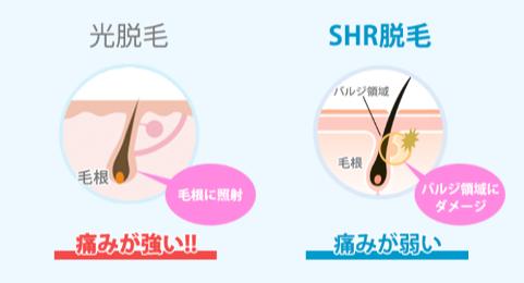光脱毛とSHR脱毛の仕組みを説明するイラスト