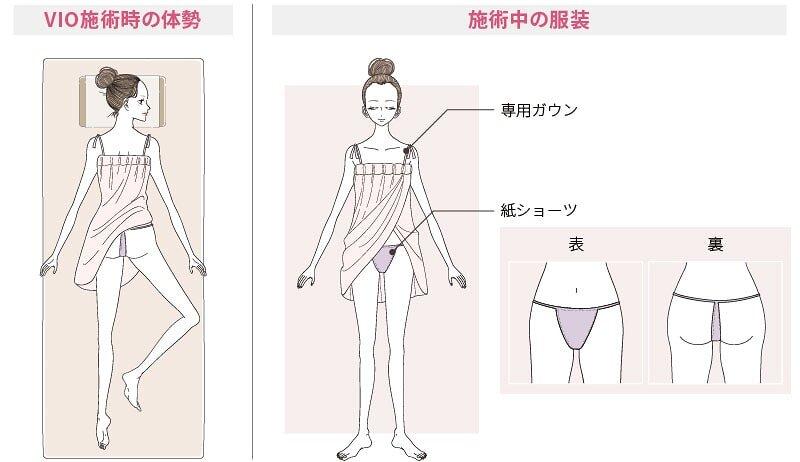 VIO施術時の体勢ト服装
